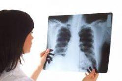 Infecțiile respiratorii din 2018 mult mai agresive decât anii trecuți: în Bistrița-Năsăud au răpus deja patru oameni